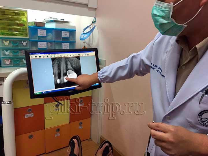 доктор стоматолог Манит, рассказывает и показывает проблему